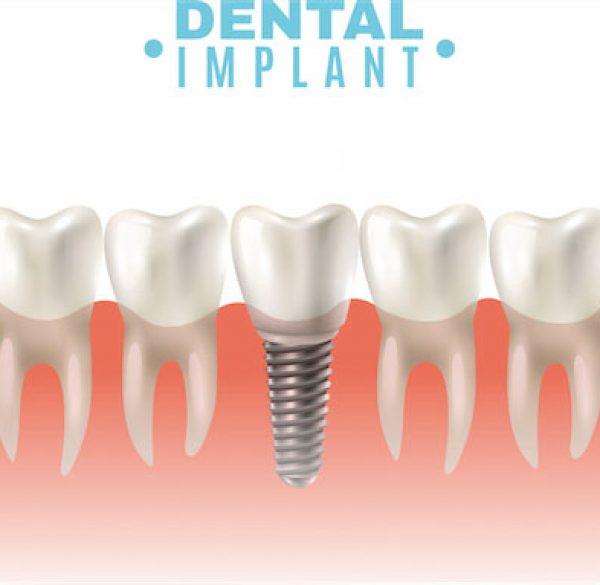 dental_implants_91487190117-1 copy