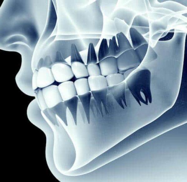 bone-grafting-adentaloffice