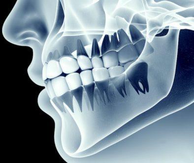 bone_grafting1487710323-1 copy