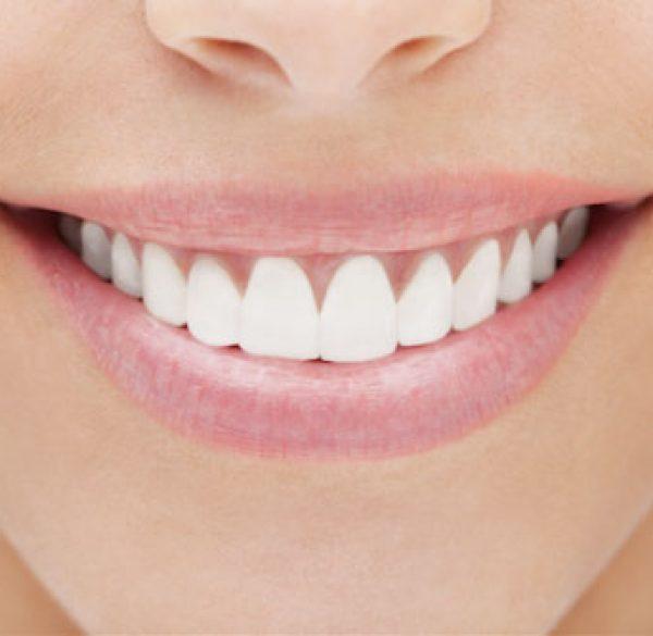 cosmetic-dental-bonding-1 copy