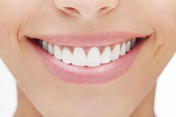 cosmetic-dental-bonding-adentaloffice