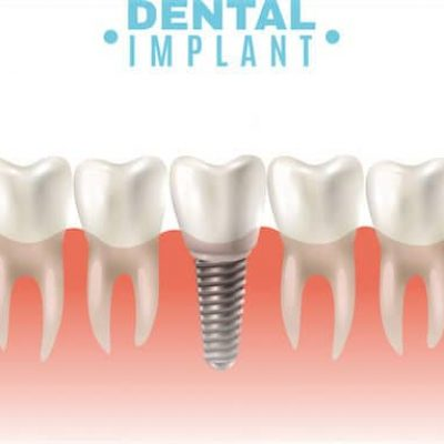 dental-implant-adentaloffice