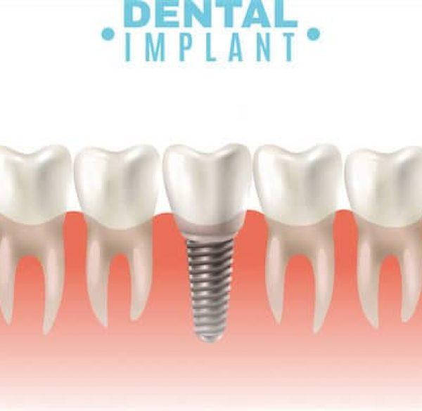 dental-implant-adentaloffice