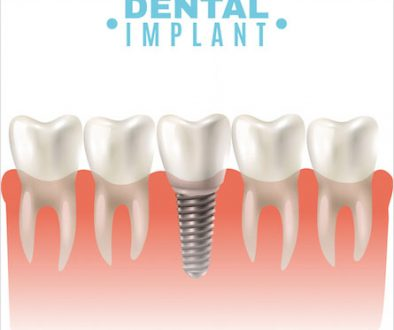 dental_implants_91487190117-1 copy