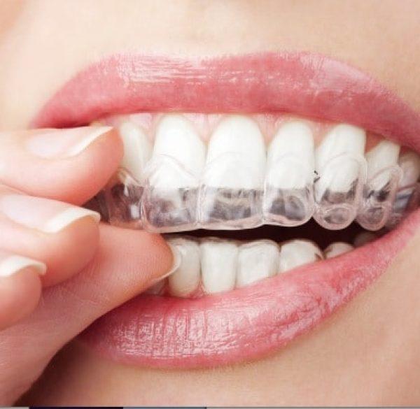 do_teeth_whitening_procedures_really_work1487551761-1
