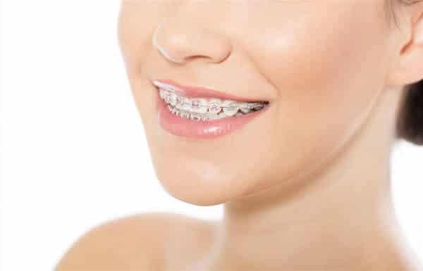 orthodontics-adentaloffice
