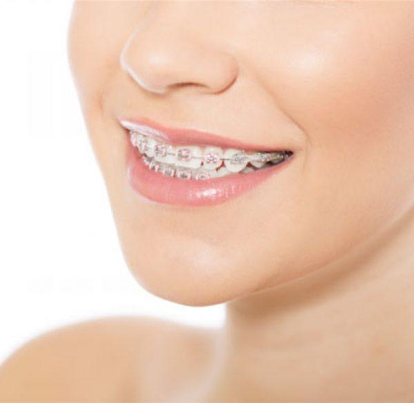 orthodontics1487708114-1 copy