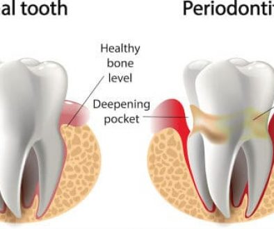 periodontal-gum-therapy-adentaloffice