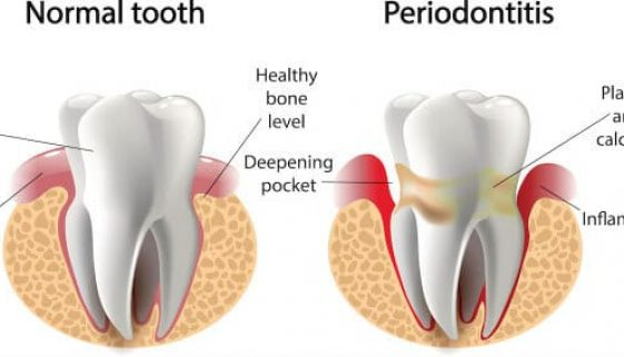 periodontal-gum-therapy-adentaloffice