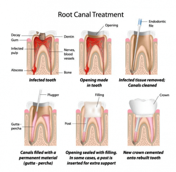 root-canal-treatment-1-1
