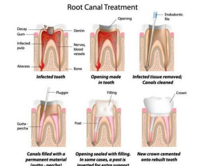 root-canal-treatment-adentaloffice