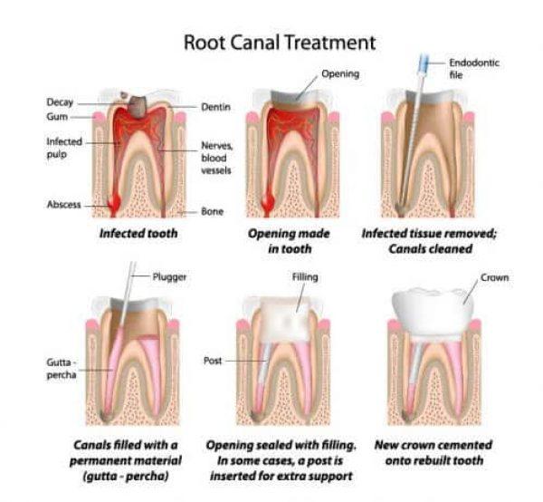 root-canal-treatment-adentaloffice