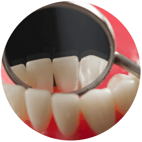 The regular visit to the dental office not only maintain a good oral health and solve a dental problem before it gets bigger but also to avoid you systemic complication like heart and vascular diseases and diabetes.