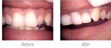 single_porcelain_veneer