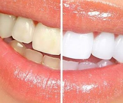 teeth-whitening-adentaloffice