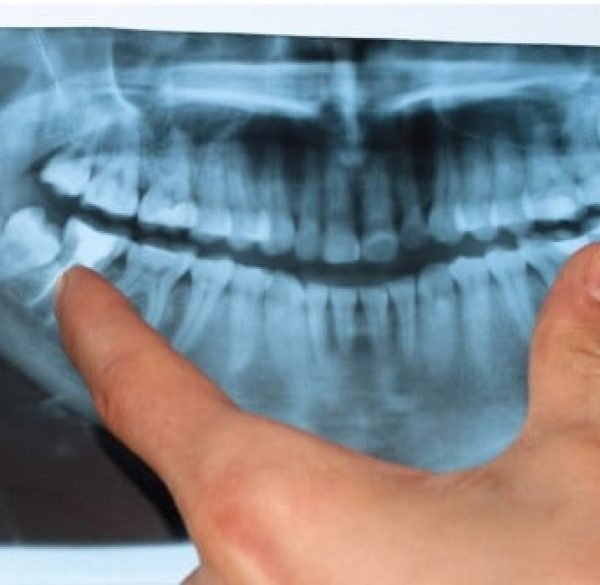 what_are_wisdom_teeth1487036633-1