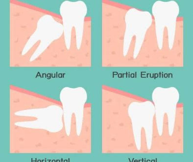 wisdom-teeth-removal-adentaloffice