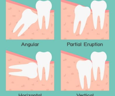 wisdom_teeth_removal_11487089297-1
