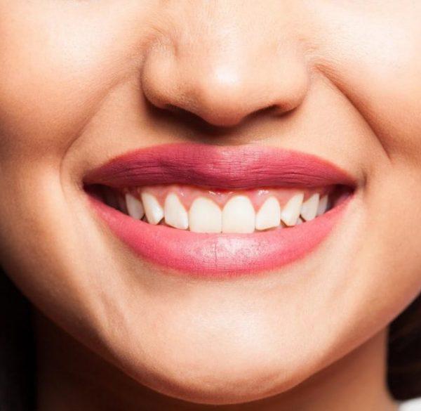 smiling-face-gum-disease-adentaloffice