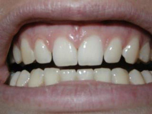 grind-teeths-adentaloffice