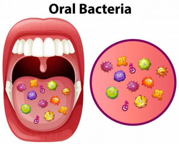 oral-bacteria-adentaloffice