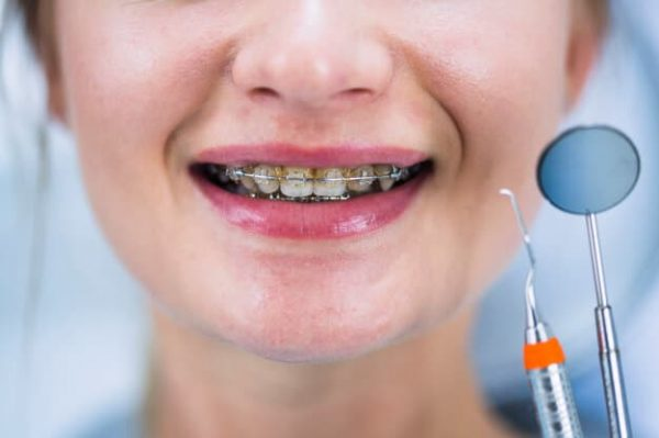 caring-your-braces-adentaloffice