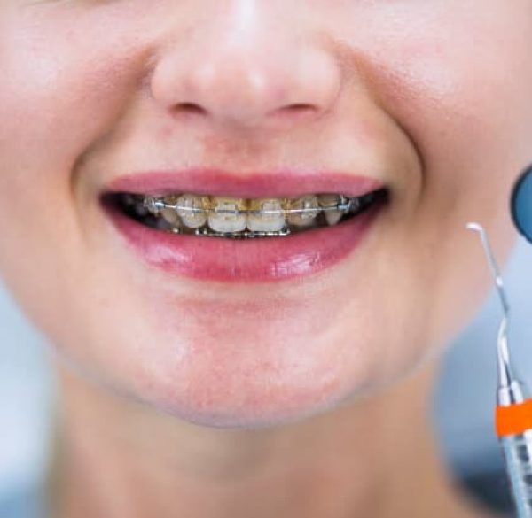 caring-your-braces-adentaloffice