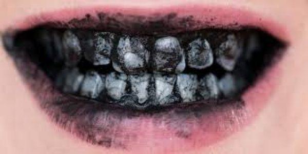 charcoal-adentaloffice