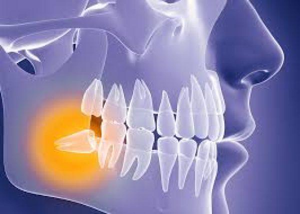 wisdom-teeth-adentaloffice