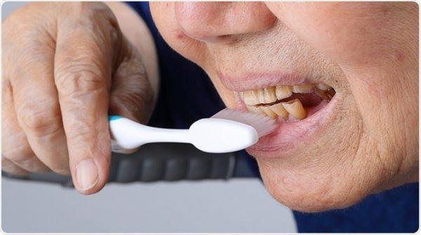 yellowing-teeth-adentaloffice