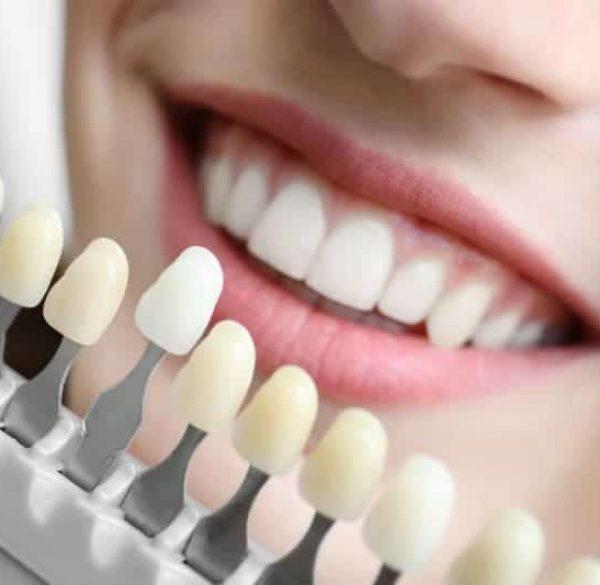 teeths-shade-guide-adentaloffice