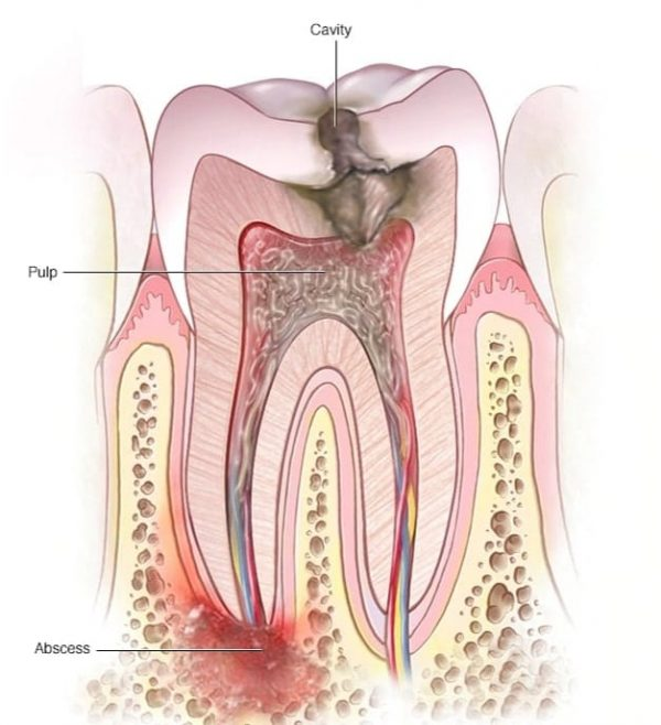 root-canal-adentaloffice